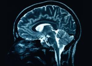brain.jpg-w=300